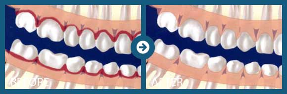 Scaling And Root Planing Periodontal Associates Of Memphis