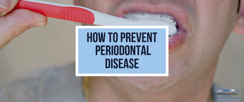How To Prevent Periodontal Disease