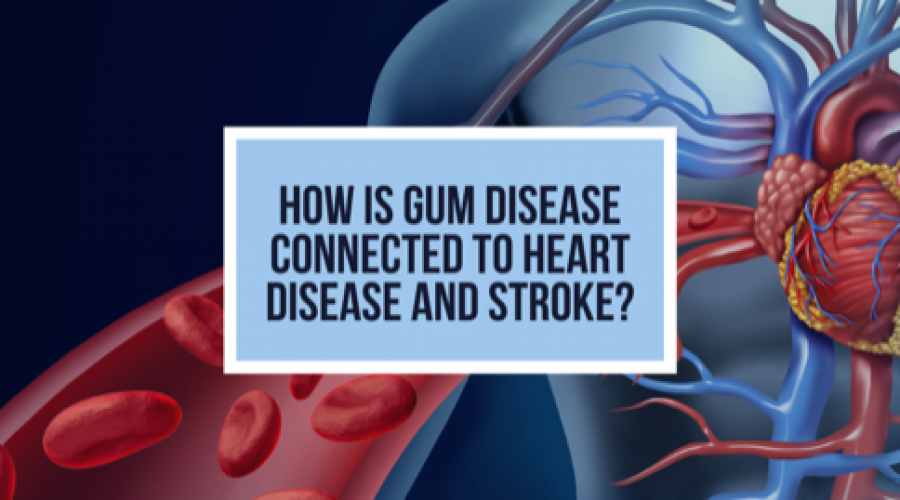 How Is Gum Disease Connected to Heart Disease and Stroke?